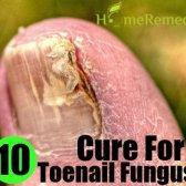 10 Meilleur remède naturel pour mycose des ongles
