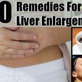 10 remèdes fantastiques pour l'élargissement du foie / hépatomégalie