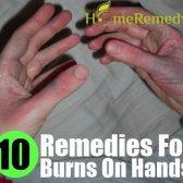 10 Accueil recours pour des brûlures sur les mains