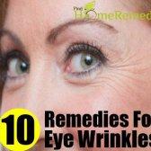 10 Accueil recours pour les rides des yeux