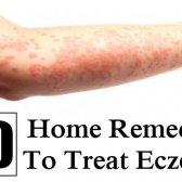 10 Accueil remèdes pour traiter l'eczéma