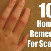10 doit suivre les remèdes maison pour la gale