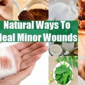 10 façons naturelles Top pour guérir les blessures mineures