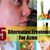 Meilleur traitement alternatif 5 de l'acné