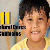 11 meilleurs remèdes naturels pour les engelures