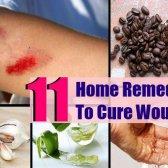 11 remèdes maison de Sure Shot pour guérir les plaies