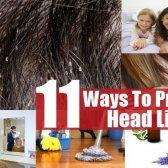 11 façons de prévenir les poux de tête