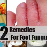 12 remèdes efficaces à domicile pour mycose des pieds