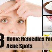 13 meilleurs remèdes maison pour les boutons d'acné