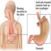 Délicieux et facile à suivre le régime alimentaire pour le traitement gerd