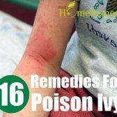 13 remèdes maison très populaire pour le sumac vénéneux