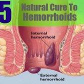 5 remède naturel pour les hémorroïdes