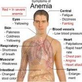 Différentes façons utiles sur la façon de guérir l'anémie
