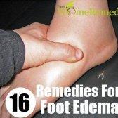 16 excellents remèdes maison pour se débarrasser de pied oedème
