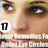 17 remèdes efficaces à domicile pour les cernes sous