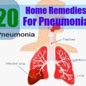 5 remède naturel pour une pneumonie