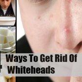 4 façons de se débarrasser des blancs