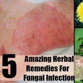 5 remèdes étonnants pour les infections fongiques