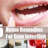 5 remèdes maison étonnants pour infection de la gencive