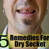 5 meilleurs remèdes maison pour prise sec
