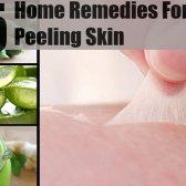 5 étapes faciles remèdes maison pour la peau qui pèle