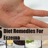 5 remèdes de régime efficace pour l'eczéma