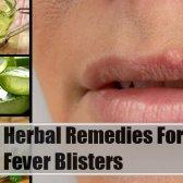 5 remèdes efficaces pour les boutons de fièvre