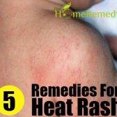 Remèdes naturels énormes pour les boutons de chaleur