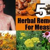 5 remèdes efficaces pour la rougeole