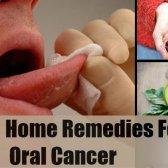 5 remèdes efficaces à domicile pour le cancer buccal