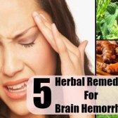5 remèdes à base de plantes pour une hémorragie cérébrale