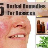 5 remèdes à base de plantes pour la rosacée
