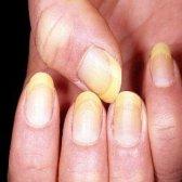Remèdes naturels efficaces pour les ongles jaunes