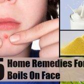 5 remèdes maison pour les furoncles sur le visage