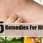 5 remèdes maison pour les ruches