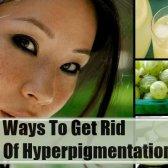 5 Accueil recours pour hyperpigmentation