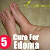 5 remède naturel pour l'œdème