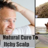 5 remède naturel pour les démangeaisons du cuir chevelu