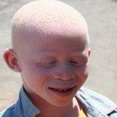 5 remèdes naturels pour l'albinisme