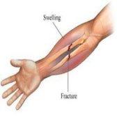 Remèdes maison utiles pour fractures