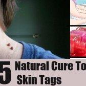 5 remèdes naturels pour les balises de la peau