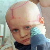 Comment traiter la leucémie