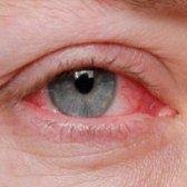 5 conseils sur la façon de prévenir l'oeil rose