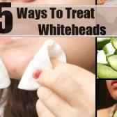 5 façons de traiter les blancs