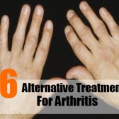 6 Le traitement alternatif pour l'arthrite