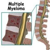 6 remèdes efficaces pour le myélome multiple