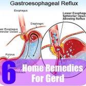 6 remèdes efficaces à domicile pour Gerd