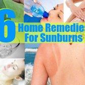 6 remèdes efficaces à domicile pour les coups de soleil