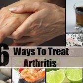 6 moyens efficaces pour traiter l'arthrite
