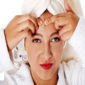 10 remèdes maison pour l'acné